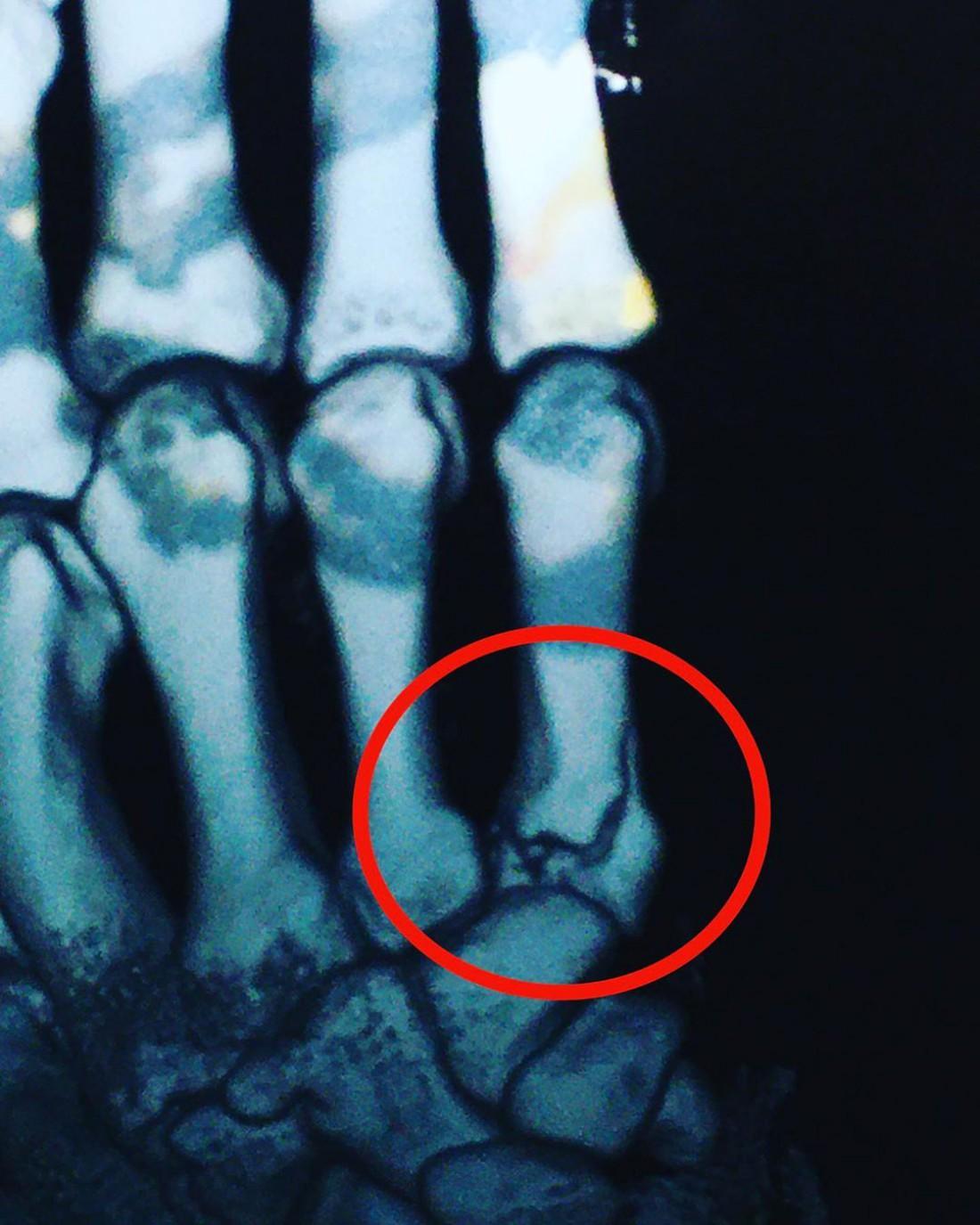 Рентгеновский снимок Артема Далакяна