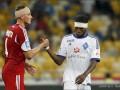 Врач Динамо рассказал о травме Кранчара и рассечении Мбокани