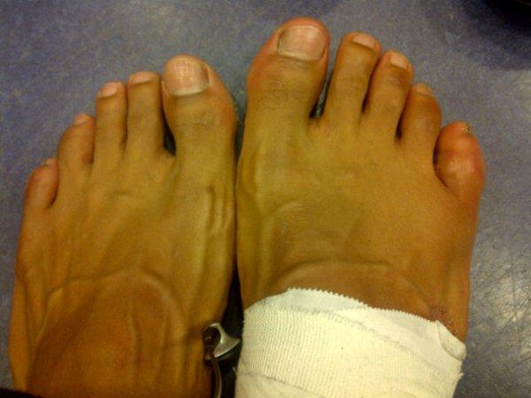 Сломанный палец Хэя