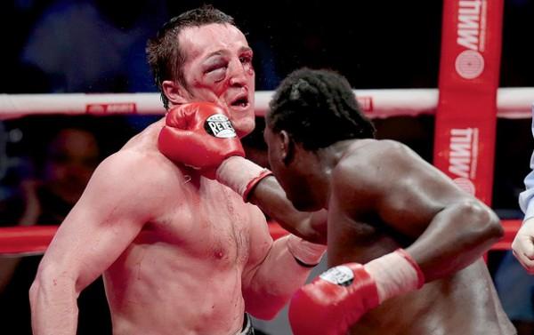 Джонс не смог повторно разбить лицо Лебедеву из-за допинга