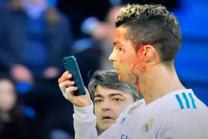 Роналду разбили лицо в матче с Депортиво