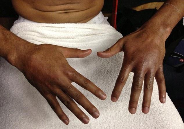 Руки Амира Хана после боя с Молиной