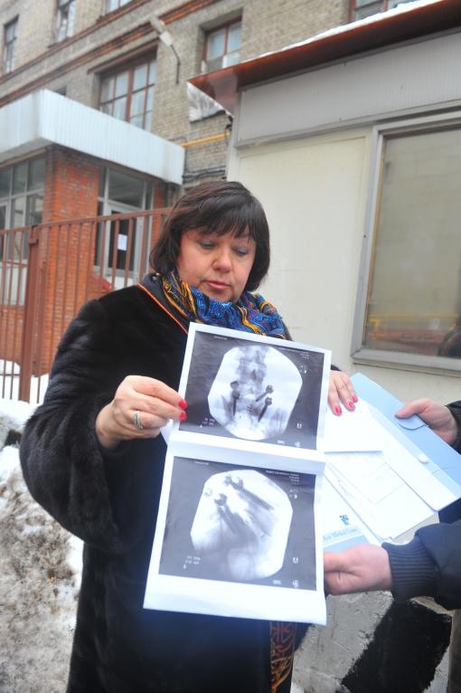 Рентгеновский снимок поврежденного участка позвоночника Плющенко
