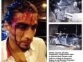 Футболист Ювентуса, залечив травму спины, попал в страшное ДТП (ФОТО)