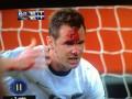 Страшное зрелище. Футболисту ногой разбили лицо (ФОТО, ВИДЕО)