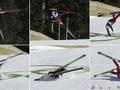 Прыжки с трамплина: Шумбарец попал в больницу после падения на тренировке