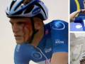 Украинский велогонщик разбил лицо своему сопернику