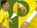 В Кубке Румынии дебютировал футболист без руки