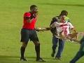 Опасная медицина: Медики уронили футболиста с носилок