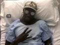 Менди показал жуткий шрам после перенесенной операции