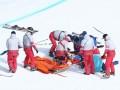 Канадский фристайлист получил страшную травму на Олимпиаде