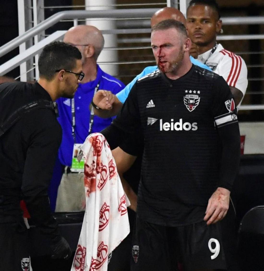 Уэйн Руни получил травму в матче МЛС