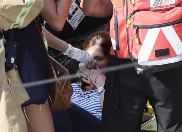 Женщина, пострадавшая от падения камеры