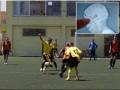 Вратарь отыграл футбольный матч с пулей в голове
