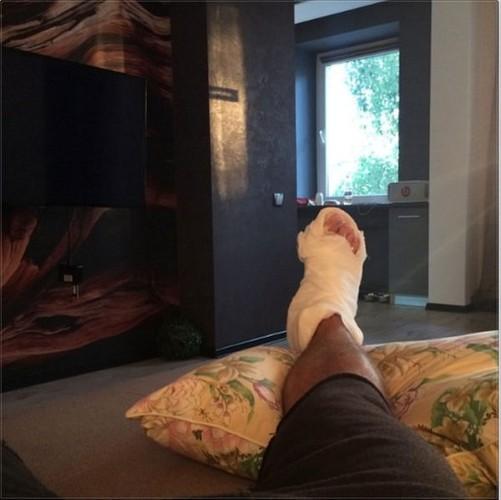 Мищенко показал свою поломанную ногу