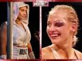 Боксерша, вышедшая в нижнем белье на взвешивание, показала жуткую травму после поражения