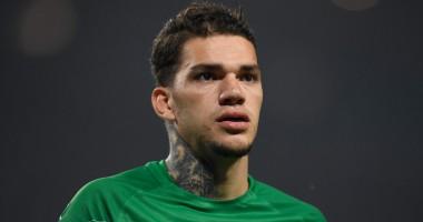 Вратарь Манчестер Сити показал устрашающее лицо после операции