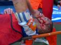Форвард Мальорки разбил голову игроку Депора в финальном матче плей-офф Сегунды