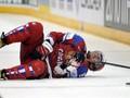 Овечкин получил повреждение в матче с Канадой