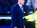 Зидан порвал брюки во время матча с Вольфсбургом