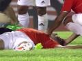 В Венесуэле футболист потерял сознание после забитого гола