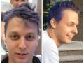 Шуфрич-младший покрасил волосы в цвета Говерлы (ФОТО)