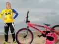 Велогонщица показала последствия жуткого ДТП, в котором он едва не погибла