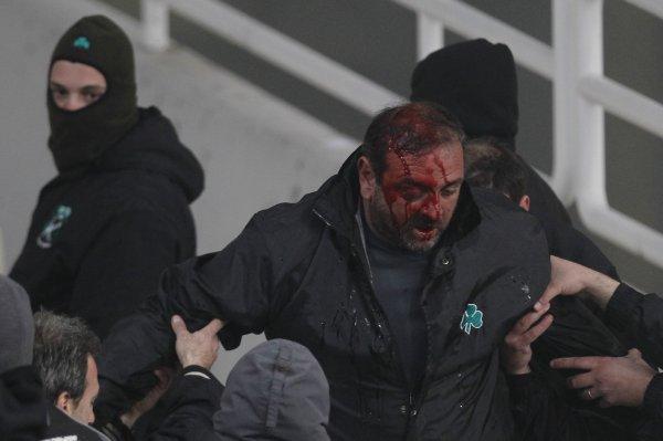 Пострадавший во время беспорядков фанат